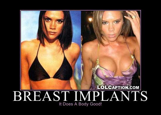 funny-demotivational-pictures-breastimplants-does-a-body-good-lolcaption